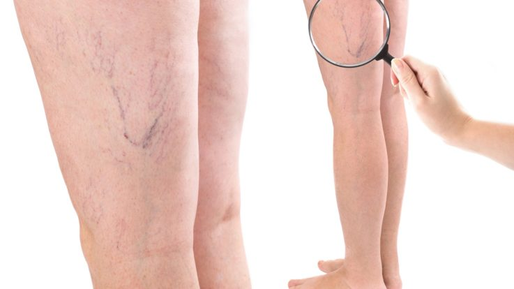 How Can I Get My Varicose Veins Removed?