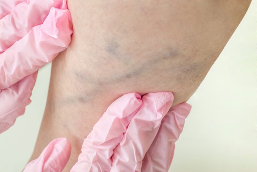 Examination of varicose veins on the womans legs