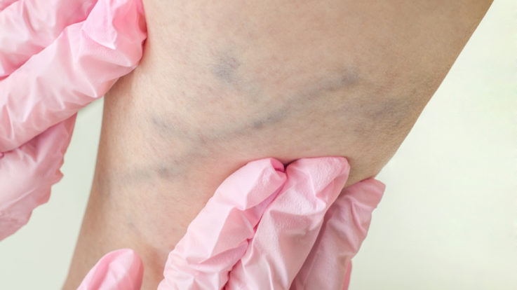 You've Got Vein Treatment Options!