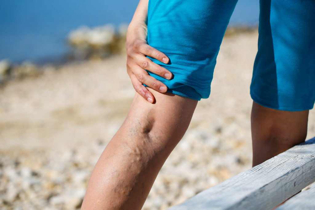 painful varicose veins in need of varicose veins treatment
