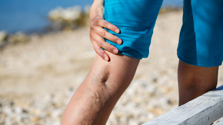 Varicose Veins in the Summer: What You Need to Know