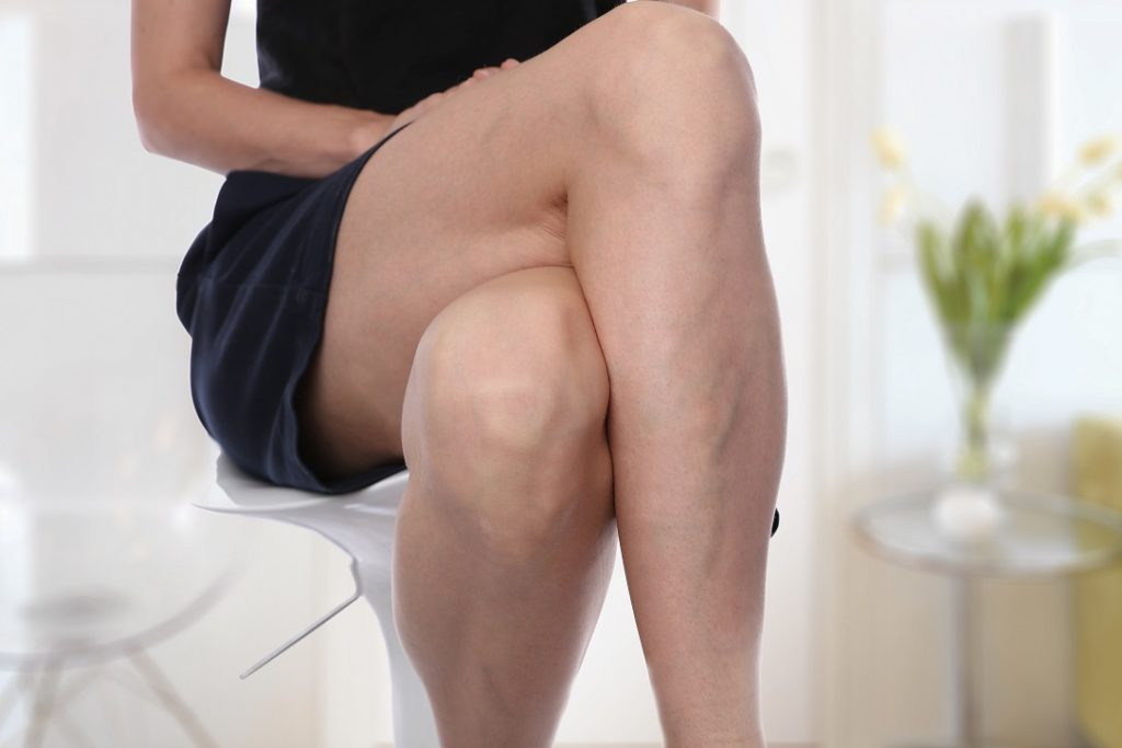 woman in black dress with her legs crossed showing her varicose veins