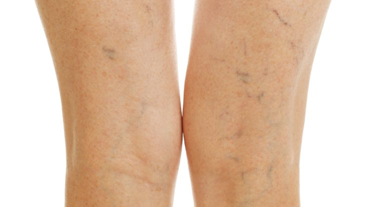 The Types of Vein Treatment We Offer at El Paso Varicose Vein Laser Clinic