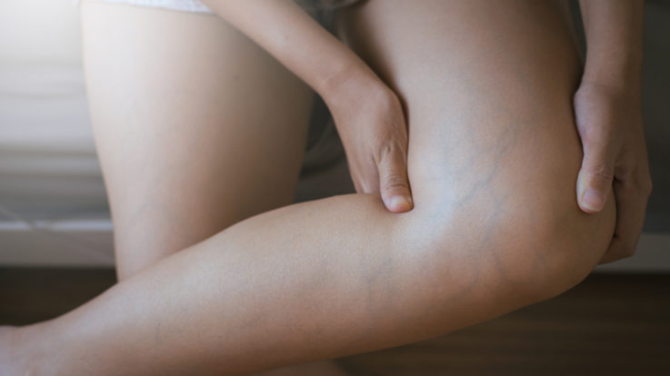 Frequently Asked Questions About Varicose Veins & Treatments