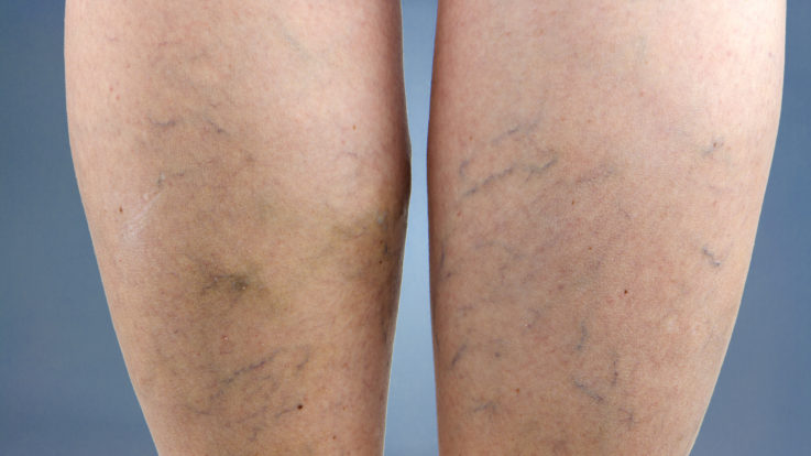 I Have Varicose Veins: What Are My Treatment Options?