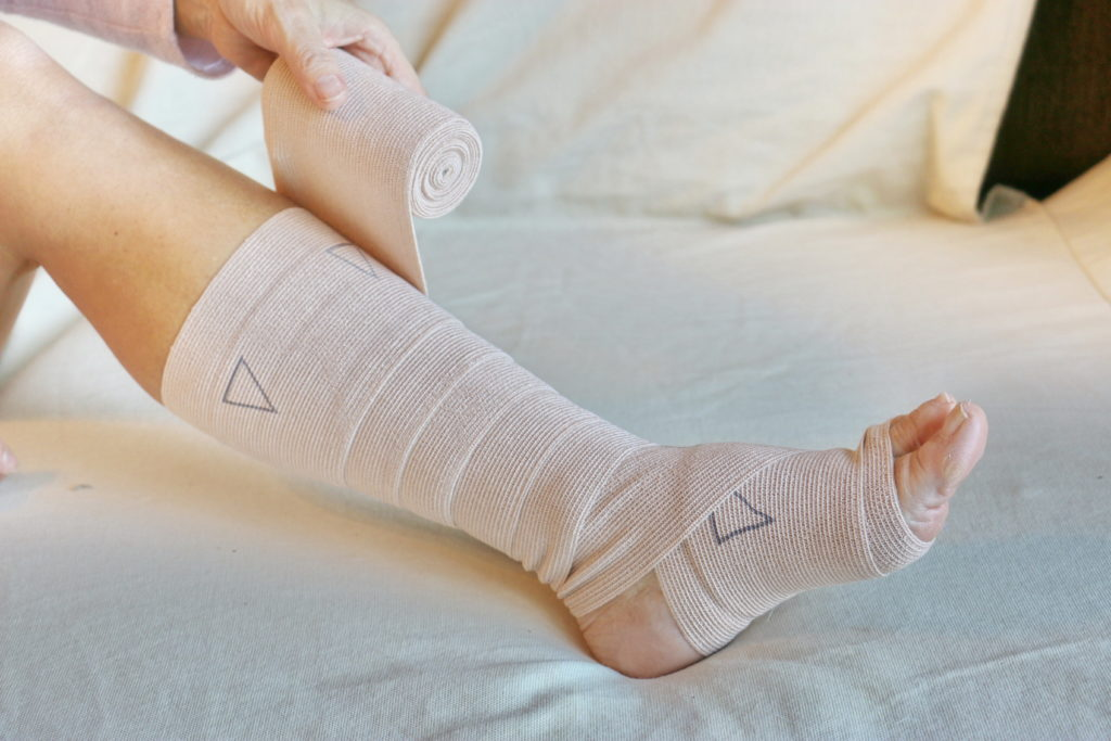 a bandaged up leg after leg ulcer surgery