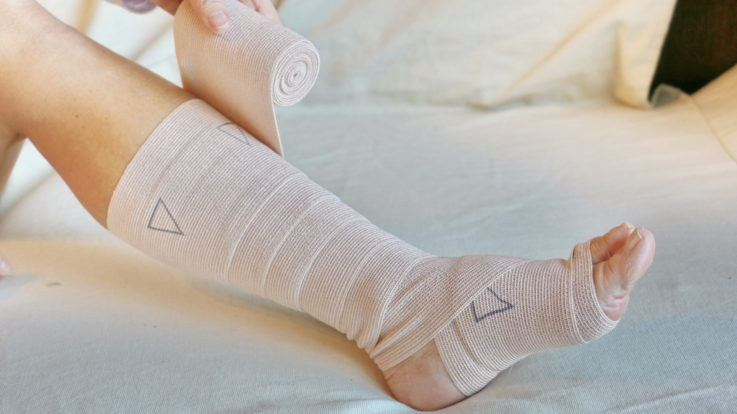 What You Need to Know About Leg Ulcers and Treatments