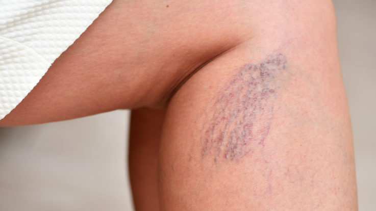 How Many Americans are Affected by Varicose Veins?