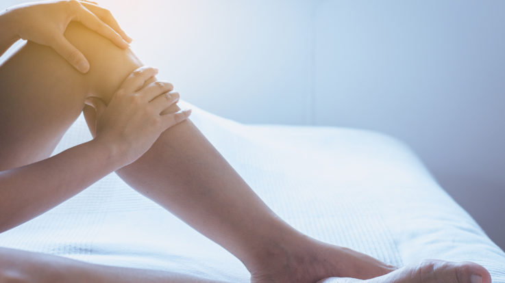 Sclerotherapy: Treating Deep Refluxing Veins