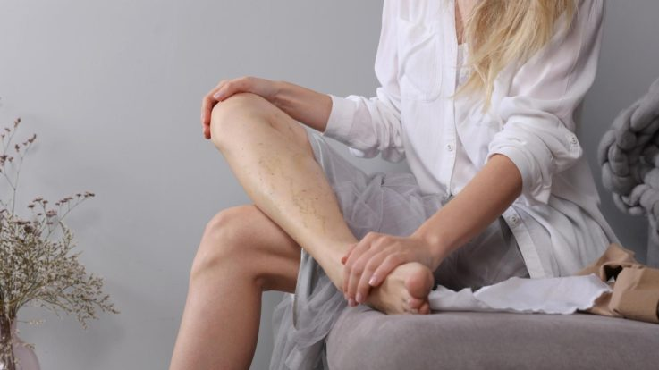 A Closer Look at Endovenous Treatments and Why You Should Consider it for Varicose Veins