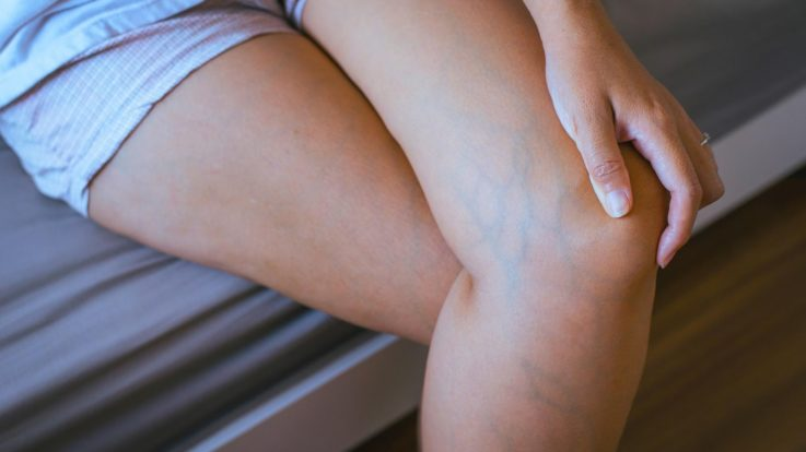 Why You Should Consider Varicose and Spider Vein Treatment